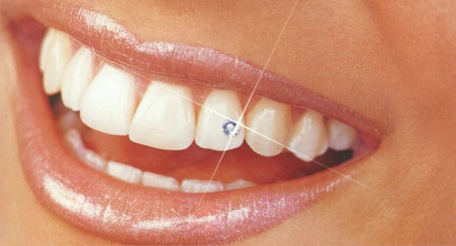 http://kerekesdental.hu/s/kerekes_dental/it/77/77-1-tooth-piercing-1.jpg